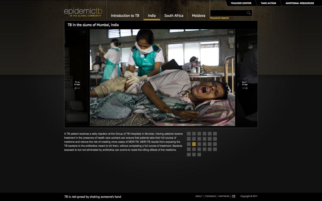 Tuberculosis-in-Indea-gallery-screenshot.jpg