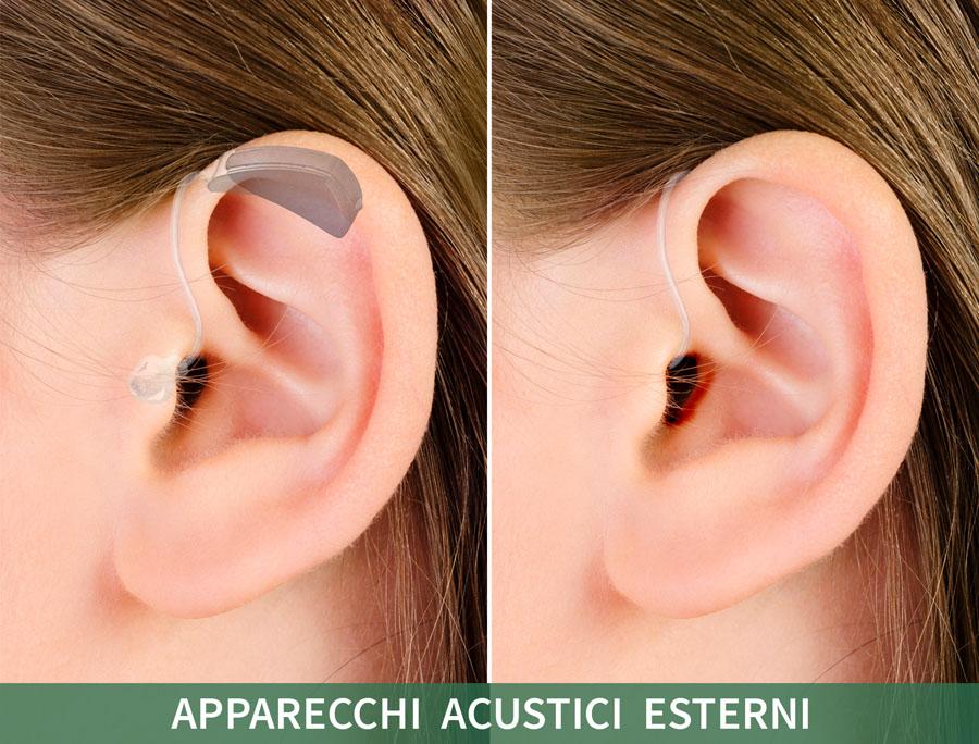 1b-Apparecchi-acustici-invisibili-Udisens.jpg