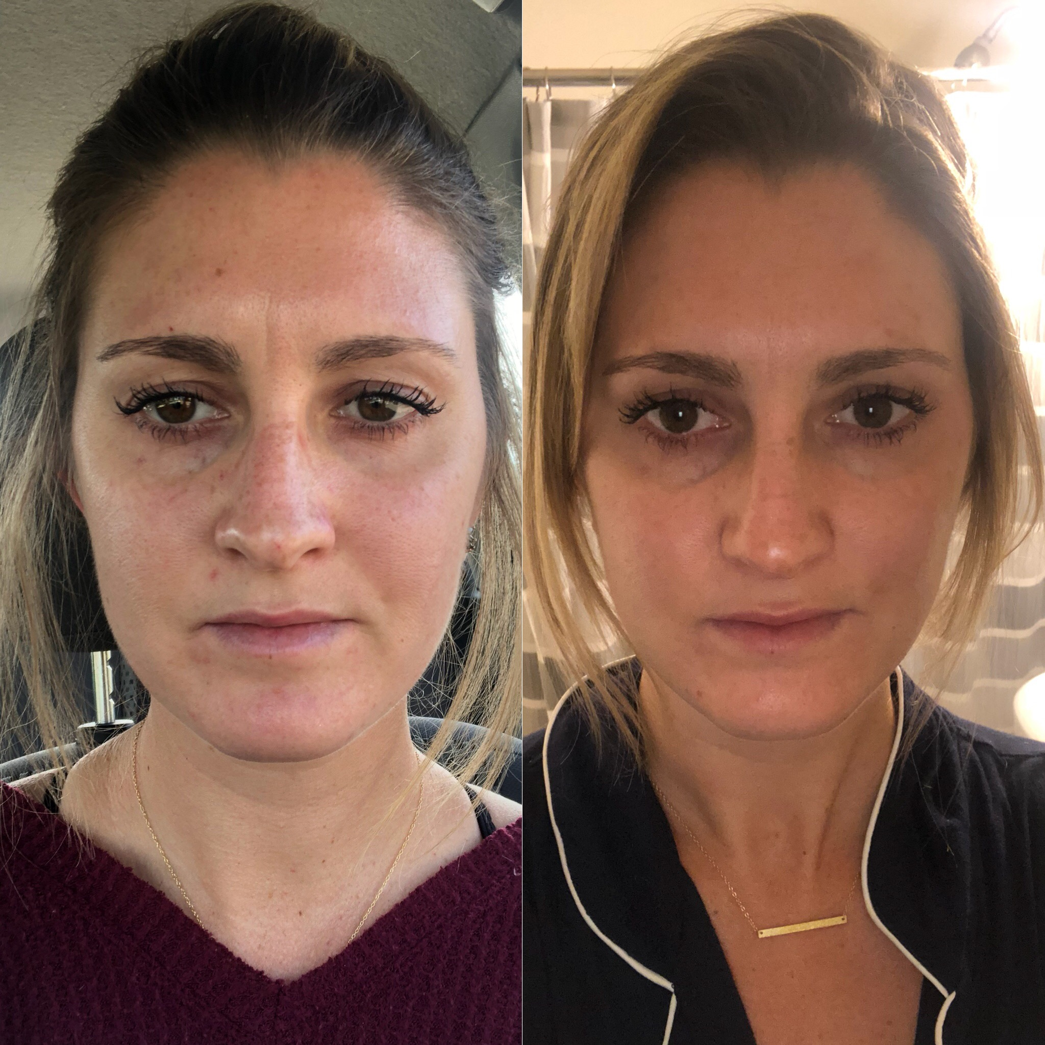 Before either treatment // 8 days after silk and IPL facial
