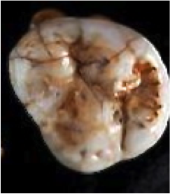 Figure 4 - Occlusal View