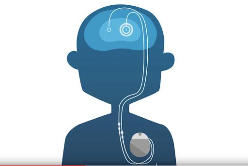 Deep Brain Stimulation for Parkinson's - An Update