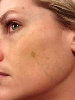 Pic taken circa 2014, prior to any peel treatments.