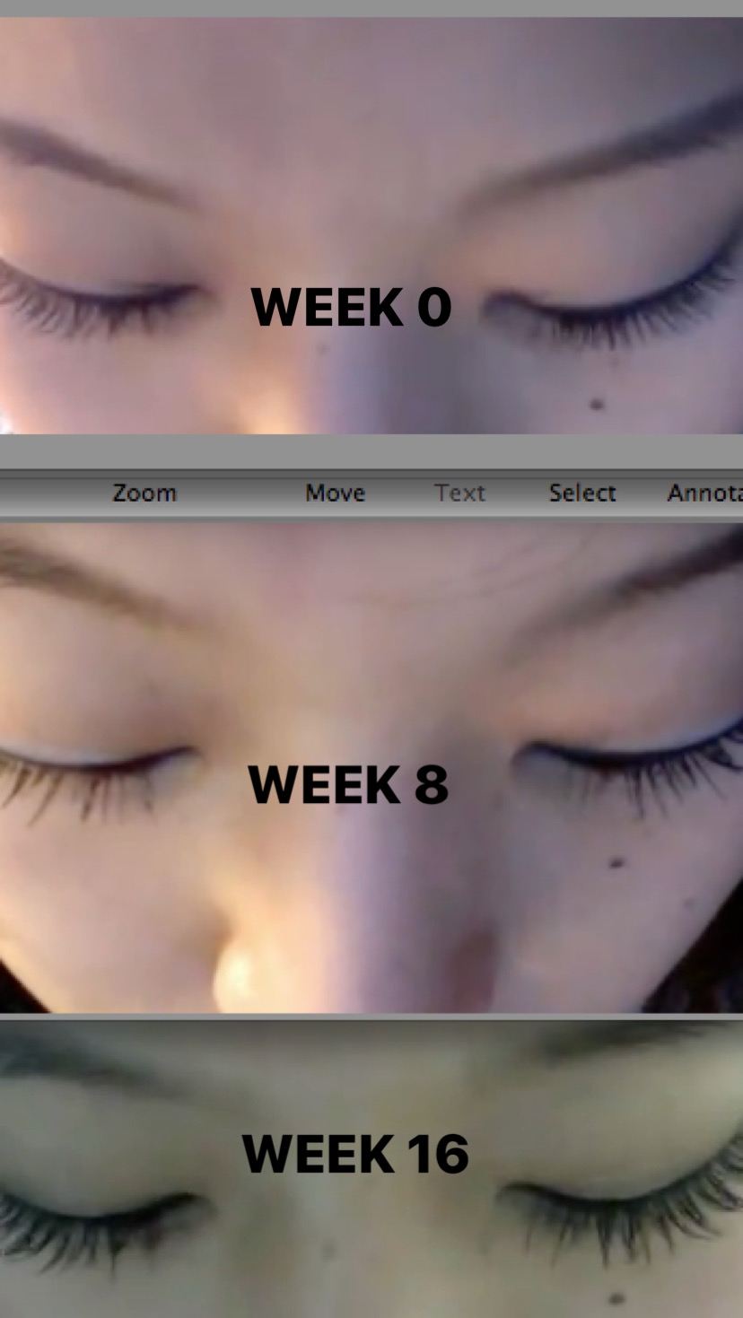 76bb5949f31 A: I don't do anything supplementary. I guess I'm lucky to still have  healthy lashes after so long! However my lash specialist did ...