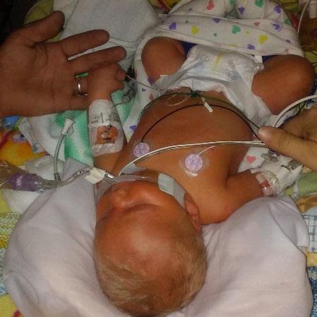 CDH Awareness, CDH Support, Congenital Diaphragmatic Hernia, CDH, Fore Hadley