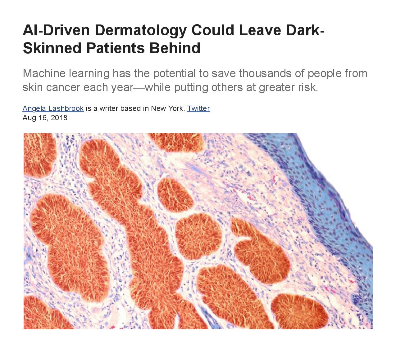 Fwd_ AI-Driven Dermatology Could Leave Dark-Skinned Patients Behind - The Atlantic - miguel@dermadicolore.com - Derma di Colore Mail-page-001.jpg