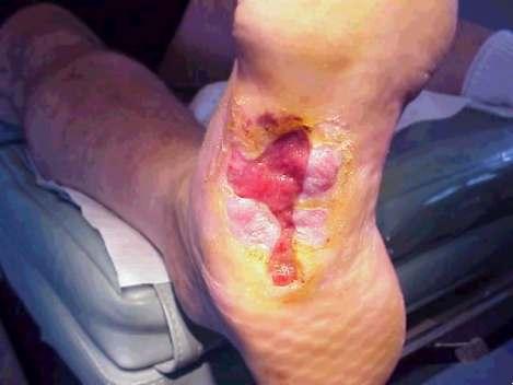 ulcer2.jpg