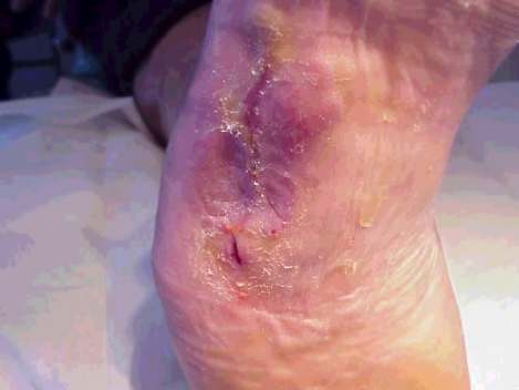 ulcer7.jpg