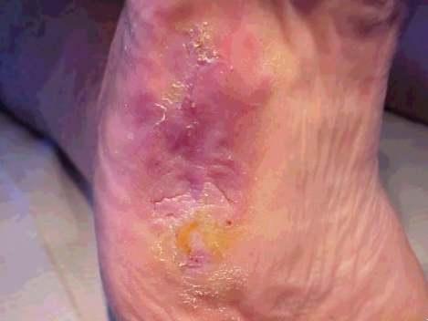 ulcer8.jpg