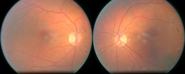 Left and right retinal images for a misclassified example. Classified as Category 4, where true category is level 1.