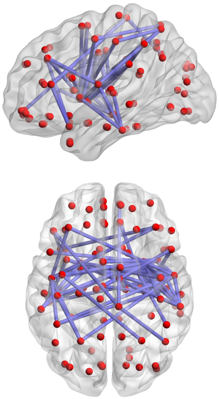 Neural nets as symbolized by brains.