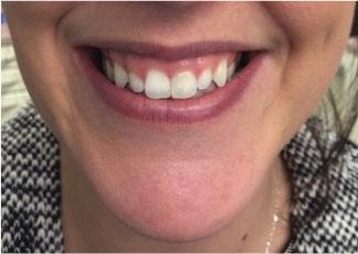 gummy smile.jpg