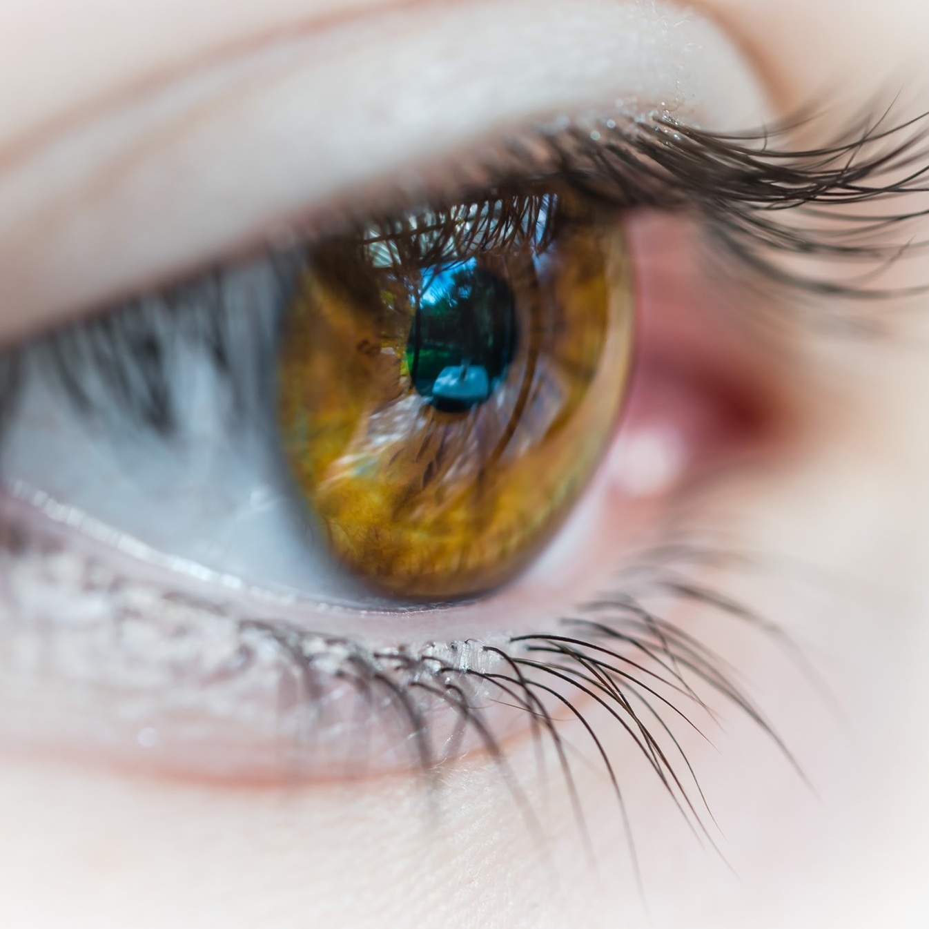 Eyes - the iris fades and weakens with age.jpg