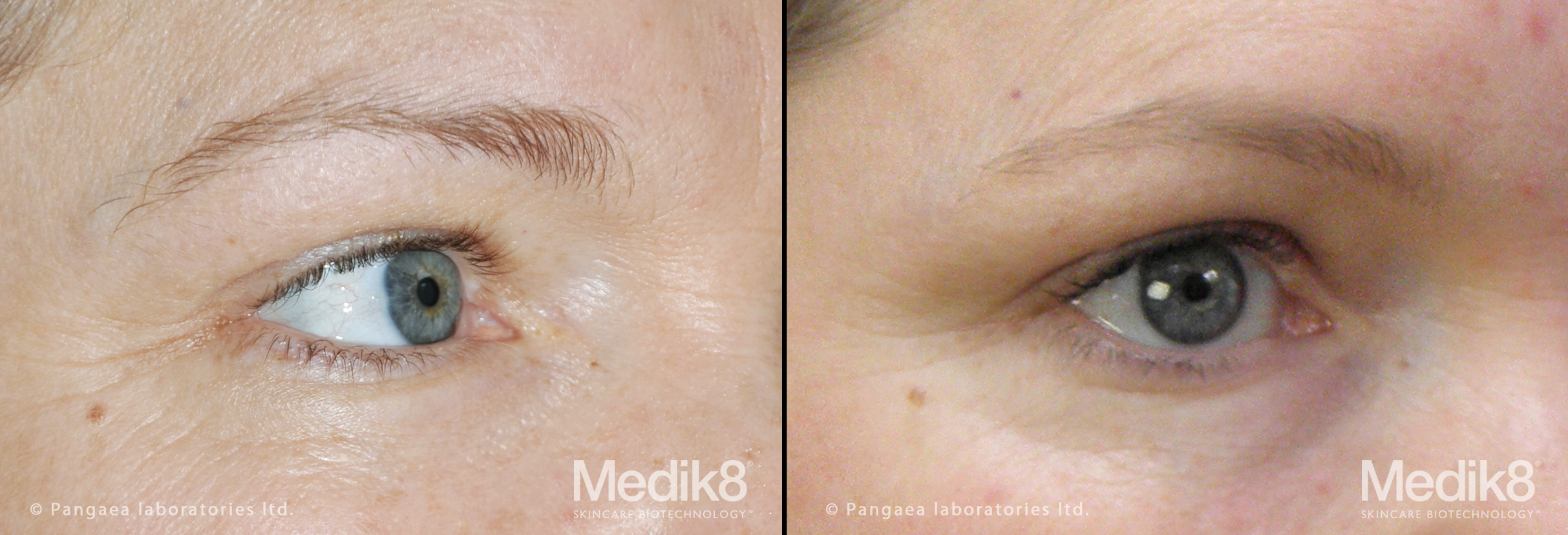 Before and After Medik8 Peels at Perfection Skin Clinic in Norwich