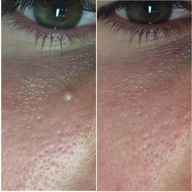 Before & After Mila Removal