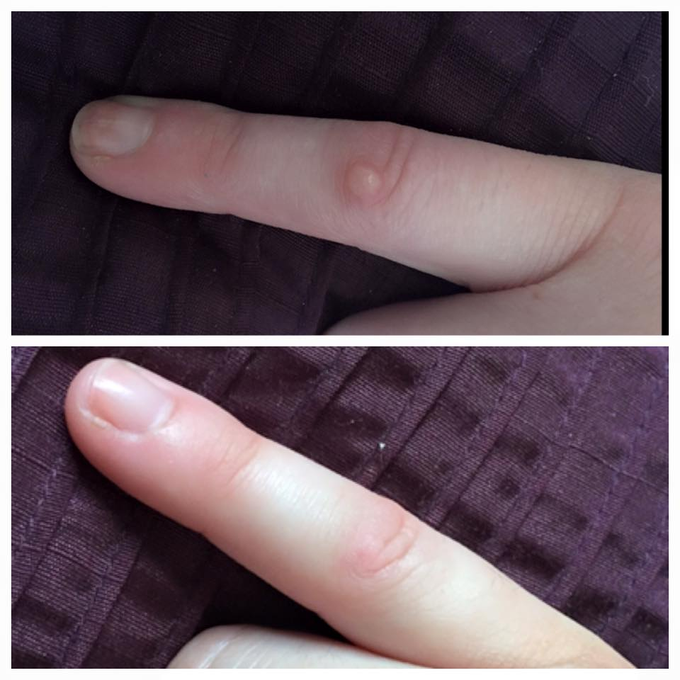 Before & After Wart removal