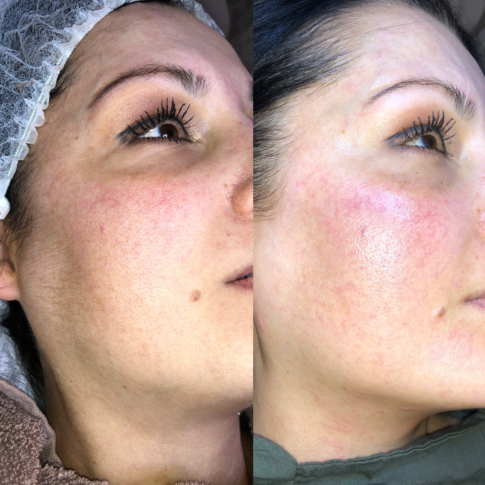 before and after dermaplaning.JPG