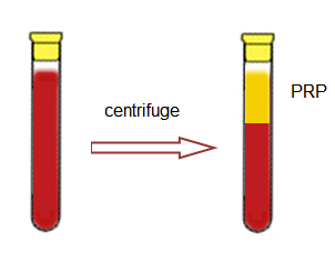 Whole blood is stored in a tube and centrifuged to separate the PRP from the red cells.
