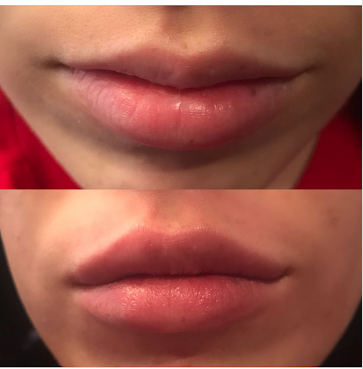 Restylane Silk - Immediately after injections. Client wanted top lip to be more proportional to bottom.