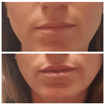 Restylane - Client wanted lip lines filled, lips a little more plump.