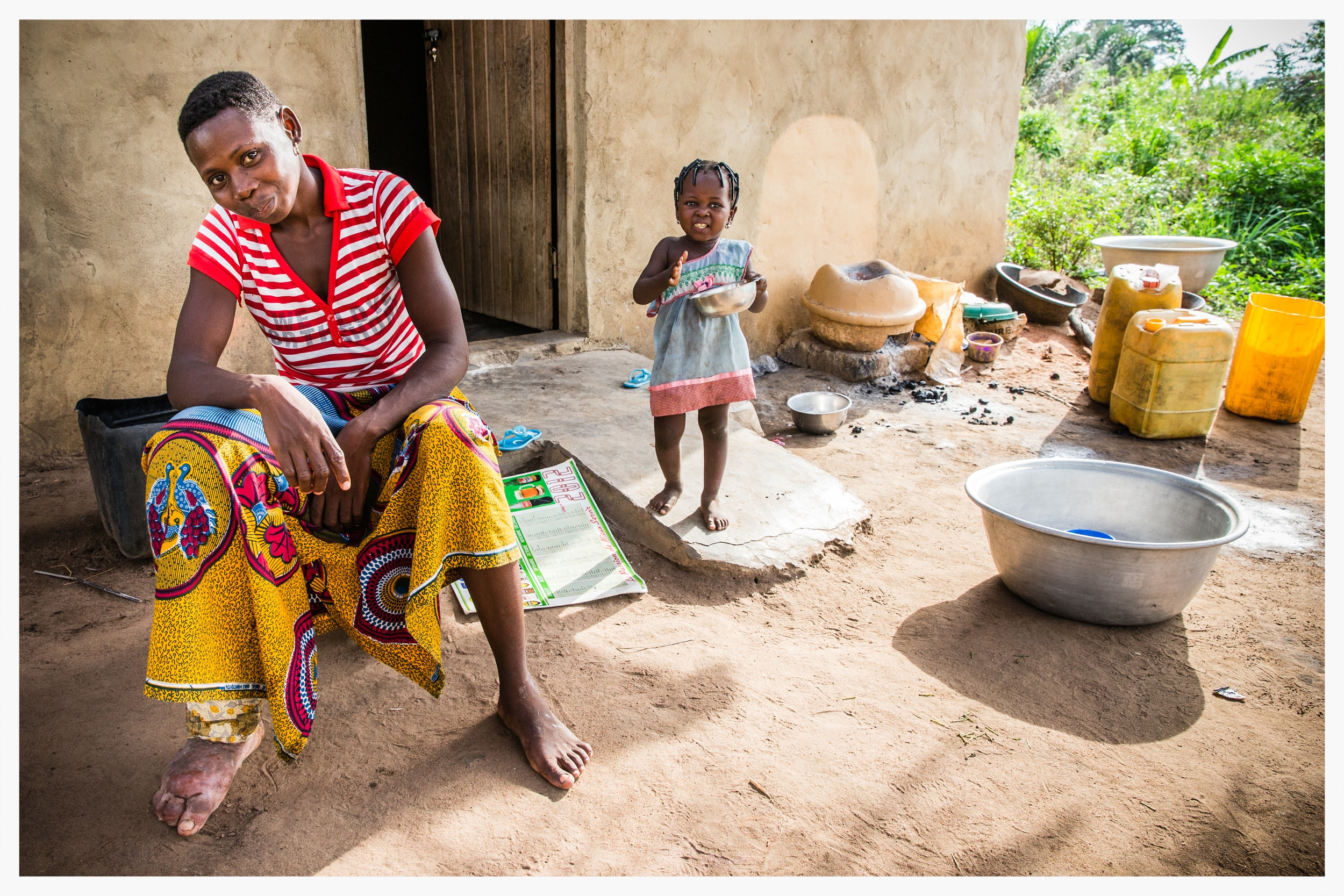 Lymphatic filariasis in Togo. Photo:Marcus Perkins for GSK