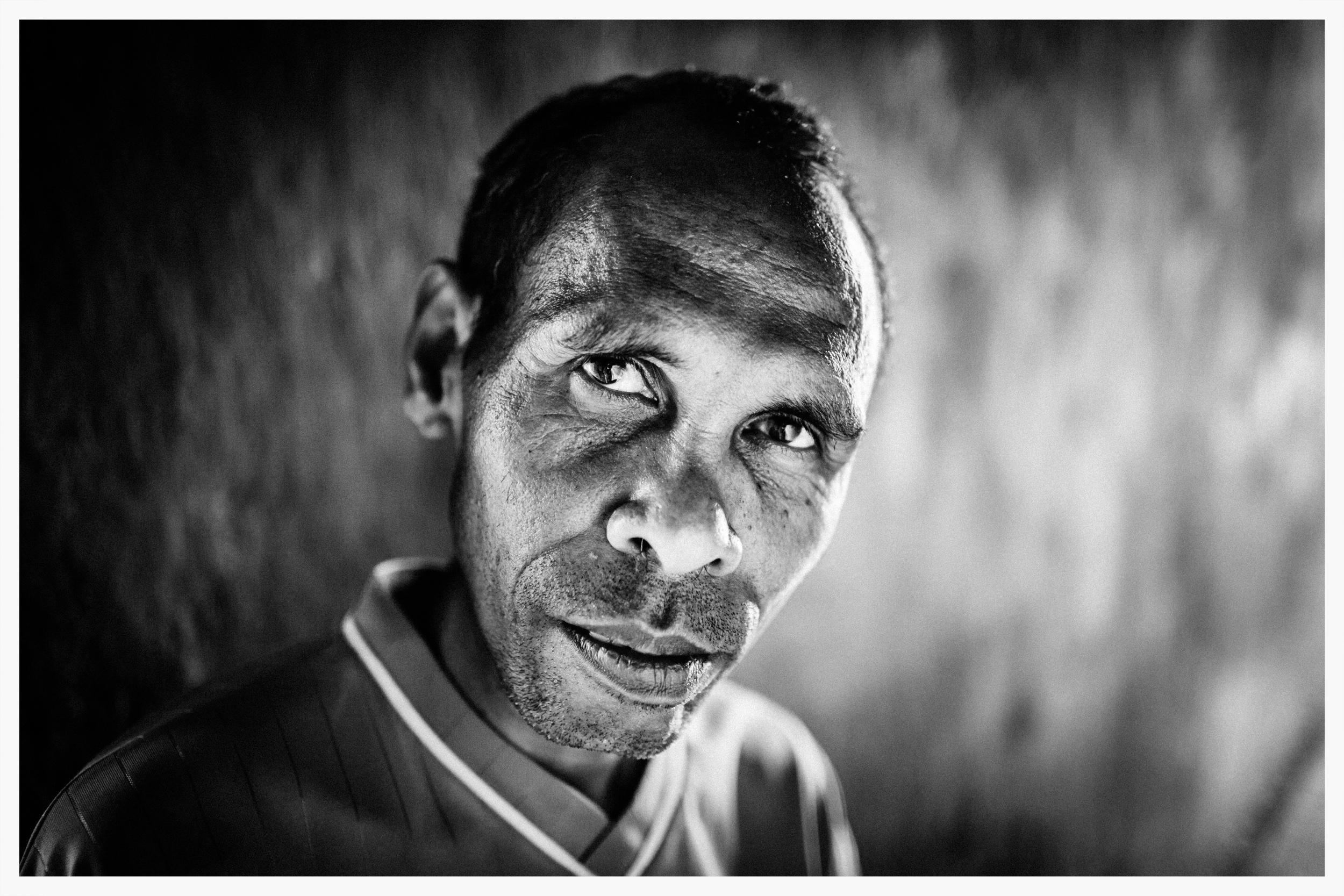 José Menezes Nunes Serrão survived an attempted beheading in April 1999.East Timor.Photo: © Marcus Perkins