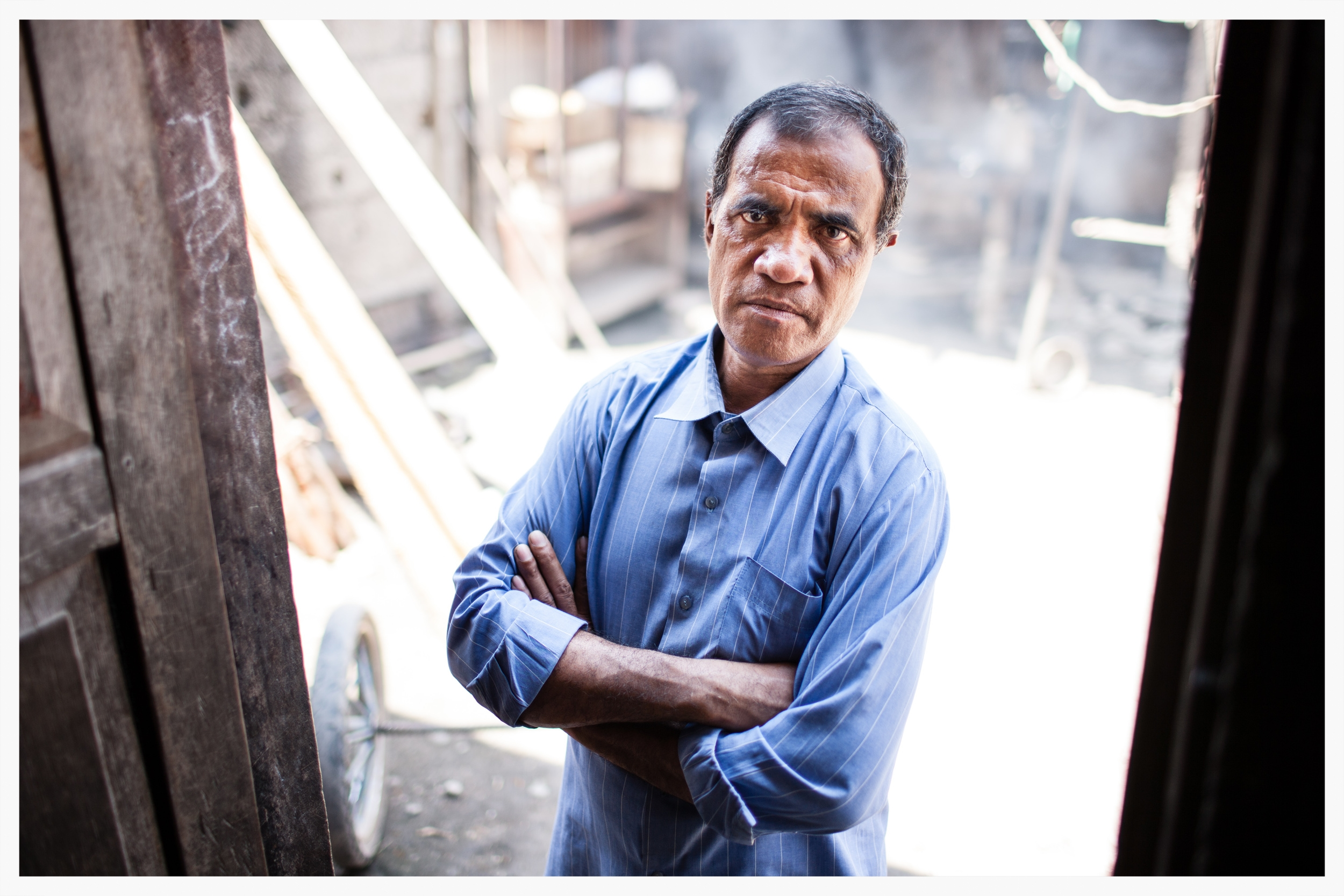 Antonio da Silva - a critic of independence - lost part of his ear when men opposed to his political views attacked him. East Timor. Photo © Marcus Perkins