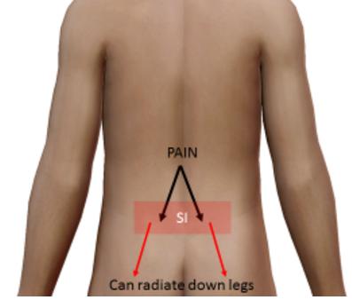 Sciatica Pain Relief Utah