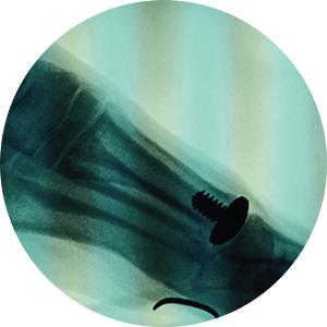 X-Ray Lateral Vilex Metatarsal Head Hemi Implant