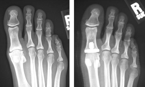 X-Ray Hallux Rigidus Vilex Hemi Implant.jpg