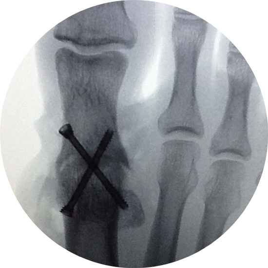 X-Ray Cannulated Screw MTP Fusion First Metatarsal