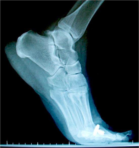 Hemi implant range of motion_restoring mobility