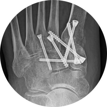 X-Ray-Vilex Lisfranc-Headless-Cannulated-Screw-