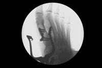 thumb-obw-035.jpg