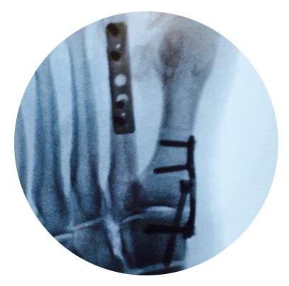Lehigh Plate Case_20150312.jpg