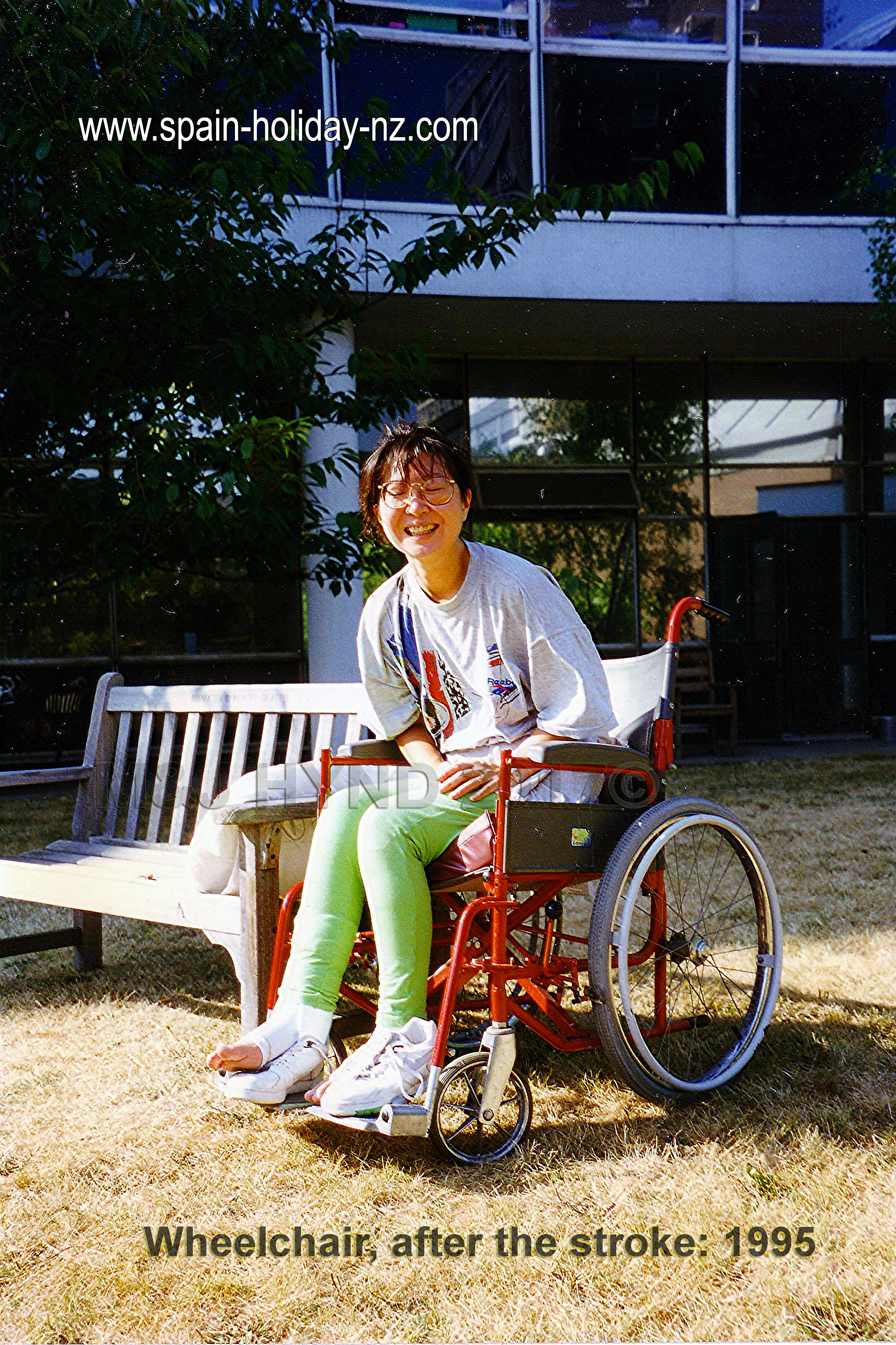 6 years later (2001) I finally got out of the wheelchair for good.