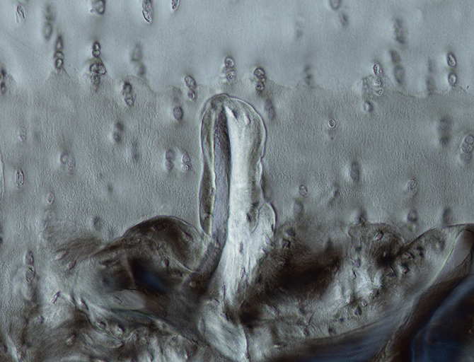 Osteoarthritis is a sinister disease! Because cartilage doesn't contain any nerves, you usually only begin to experience joint pain once your cartilage has become significantly degenerated. We don't have a good understanding of how the disease develops or what causes it in most cases.  This image shows a bone spicule that has grown from the underlying bone into the cartilage. This bone invasion begins early in the disease, before the cartilage has be lost and may help us to understand how the disease progresses.