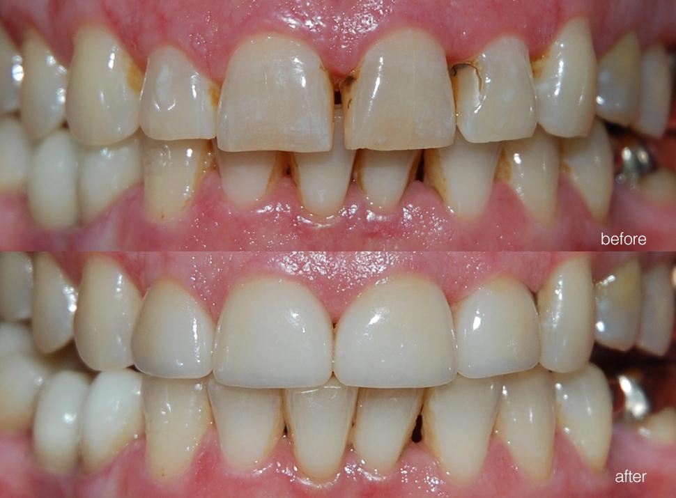 edgewood-dental-ba-00.jpg