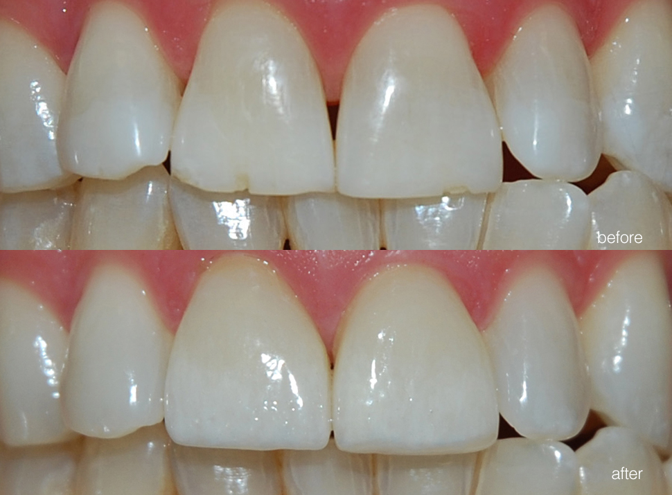 edgewood-dental-ba-01.jpg