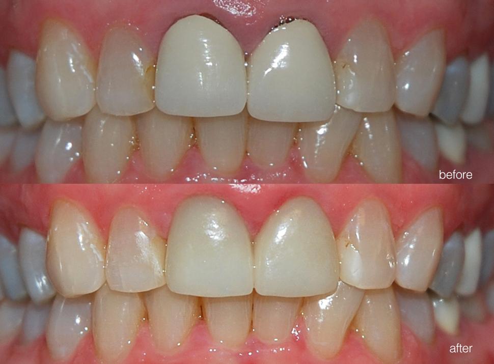 edgewood-dental-ba-05.jpg