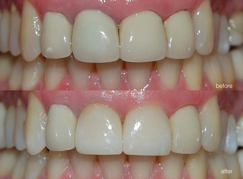 edgewood-dental-ba-04.jpg