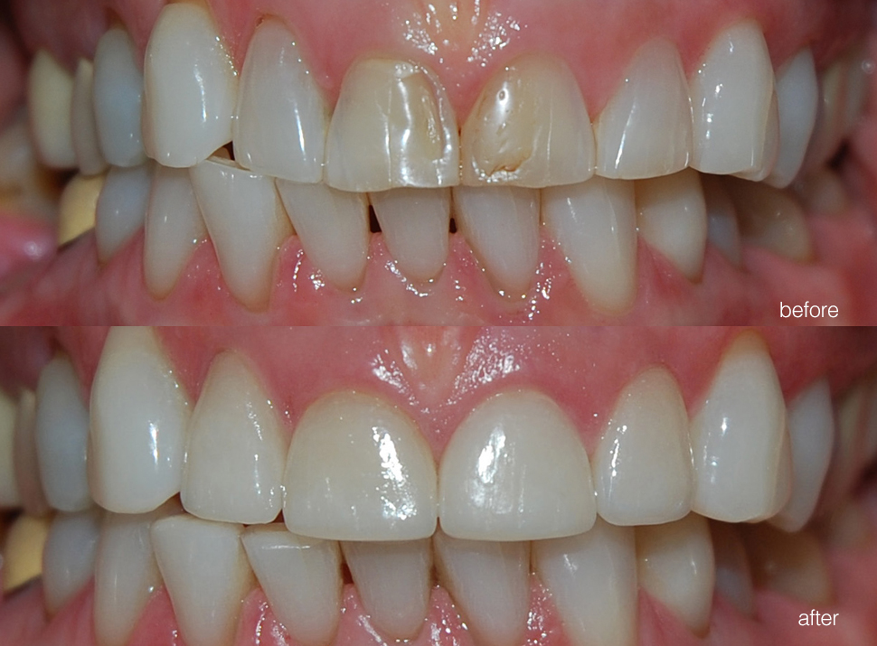edgewood-dental-ba-02.jpg