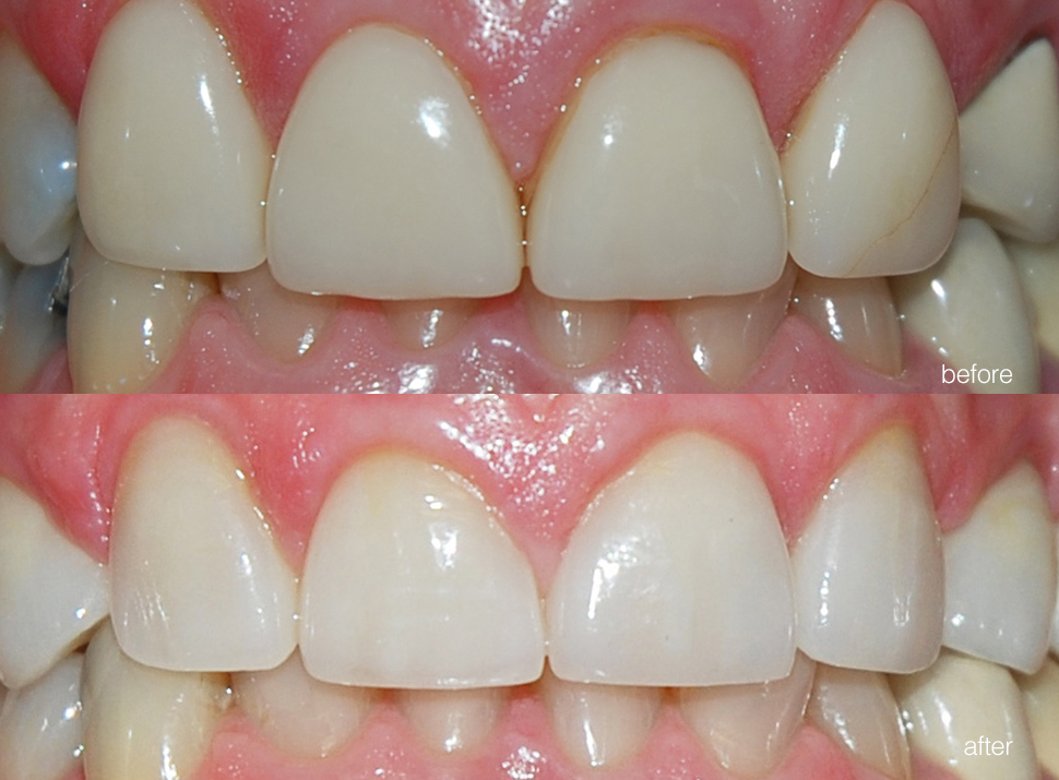 edgewood-dental-ba-03.jpg