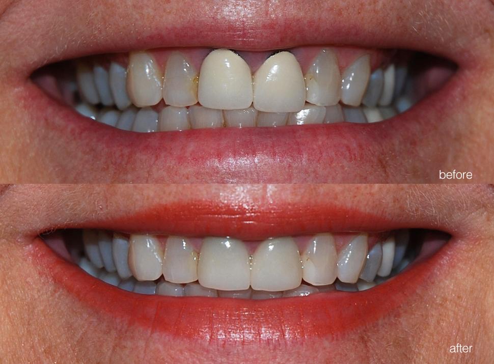 edgewood-dental-ba-06.jpg