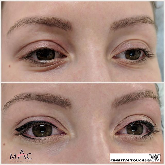 Before and right after eyeliner for this beautiful lady 😍 Wake up looking ready to take on the world with smudge-proof and waterproof eyeliner. Now you can have eyeliner that lasts not only all day but all year! ❤️ Book your appointment at www.creativetouchbeauty.com or call (916) 571-2771 for more info. #microbladingartcenter #folsom #microbladingartcentersacramento #sacramento #granitebay #eldoradohills #microstrokes #featherstrokes #microblading #wakeupwithmakeup #microbladingtraining #creativetouchbeauty #alopecia #girlswithtattoos #eyebrows #brows #microbladingsanfrancisco #lipsmakeup #makeupmafia #transformation #makeupartist #permanenteyebrows #naturaleyebrows #microbladingfolsom #beautiful #microbladingmen #inspiration #makeup #permanentmakeup #sacramentomicroblading