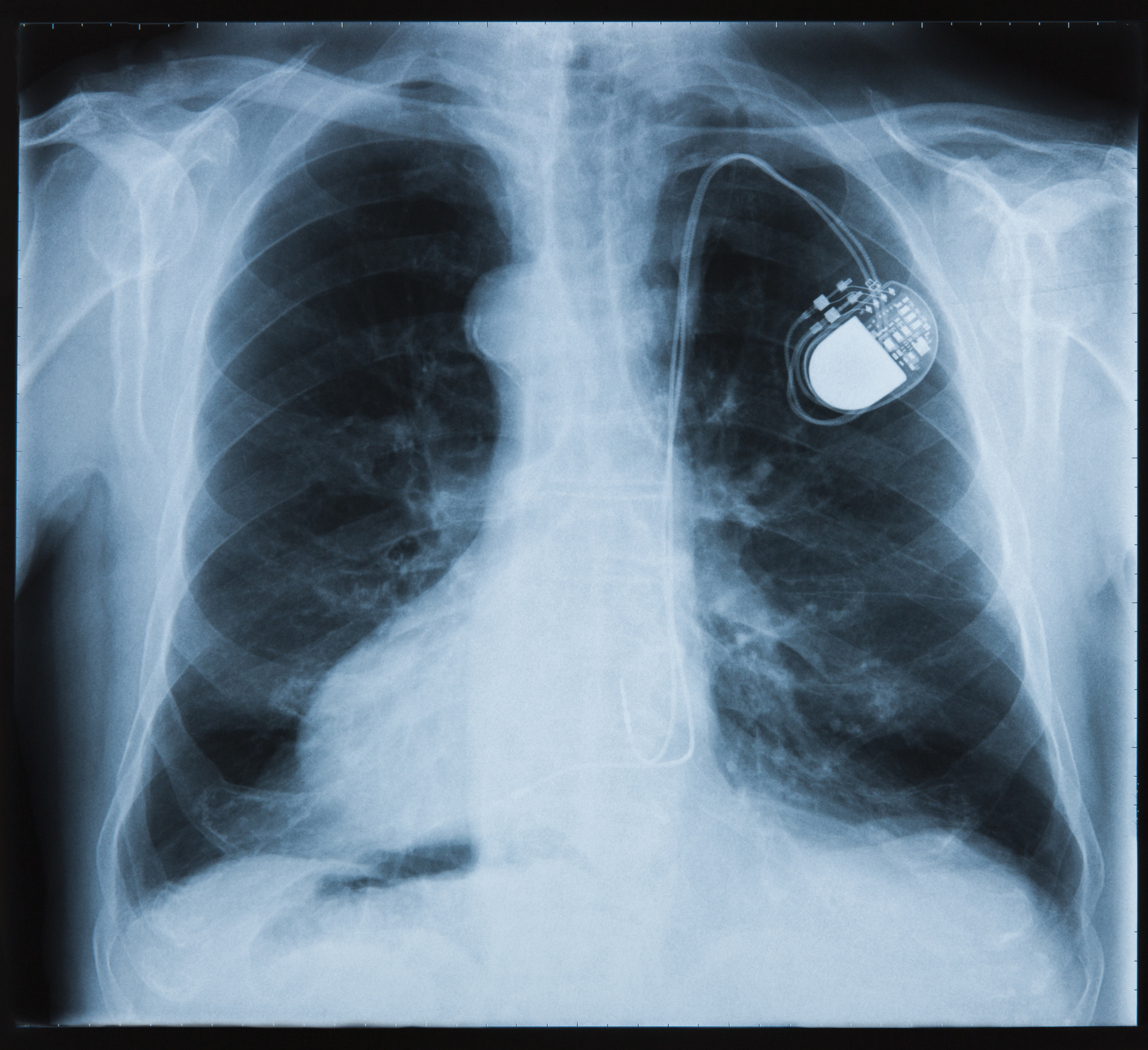 Pacemakers are Vulnerable to Cyberattacks