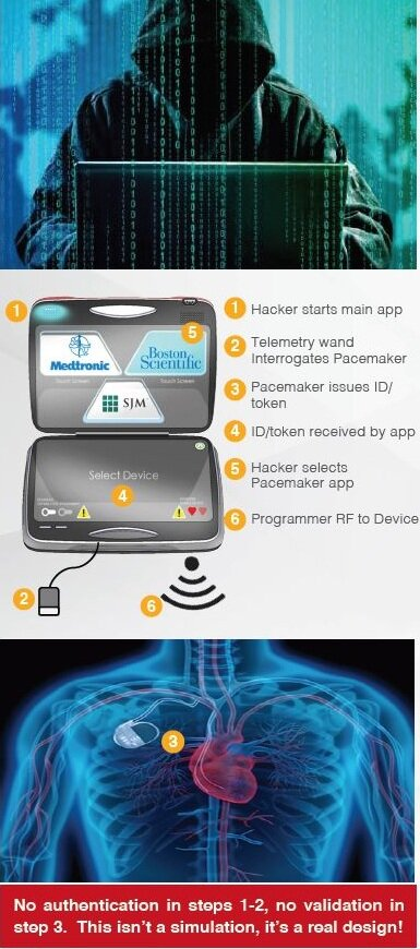 Steps to Hack a Pacemaker