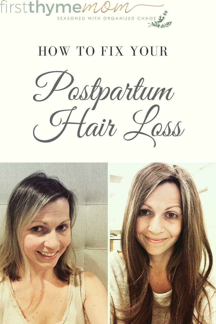Solutions for hair loss in women. What to do about postpartum hair loss.