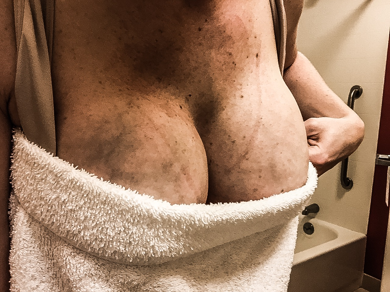 Engorgement cause mastitis and clogged milk ducts early in motherhood. It was difficult to reduce my engorgement.