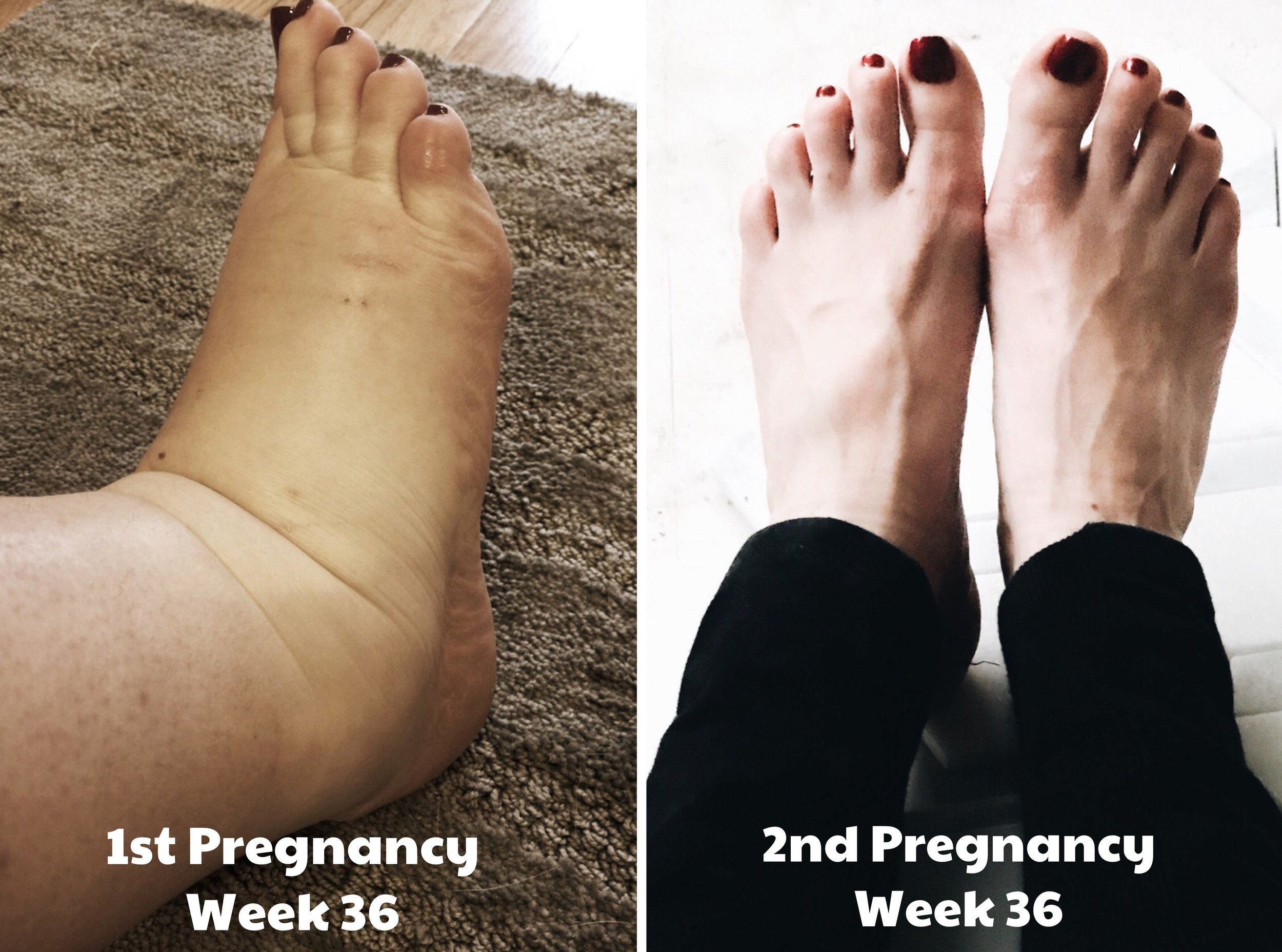 Pregnancy Swelling In my First Pregnancy vs. My Second Pregnancy. How one pregnancy can differ from another.