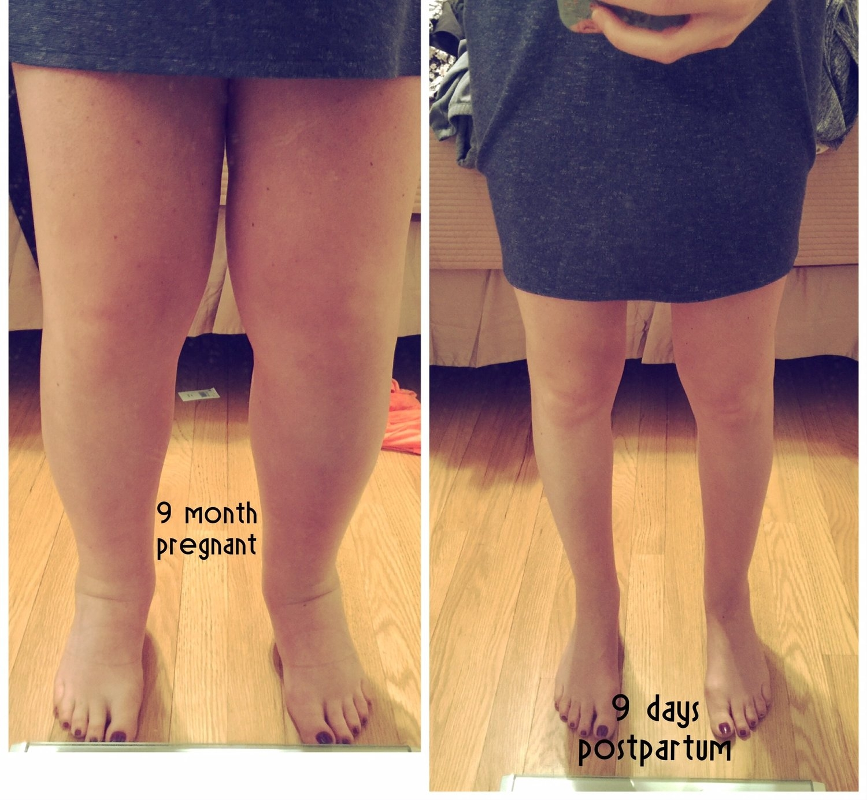 pregnancy swelling